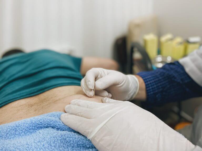 דיקור לטיפול בכאבי גב תחתון